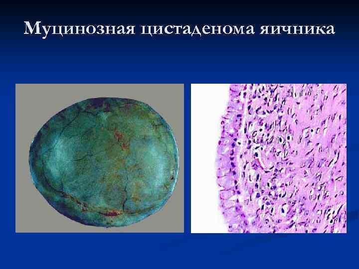 Муцинозная цистаденома яичника