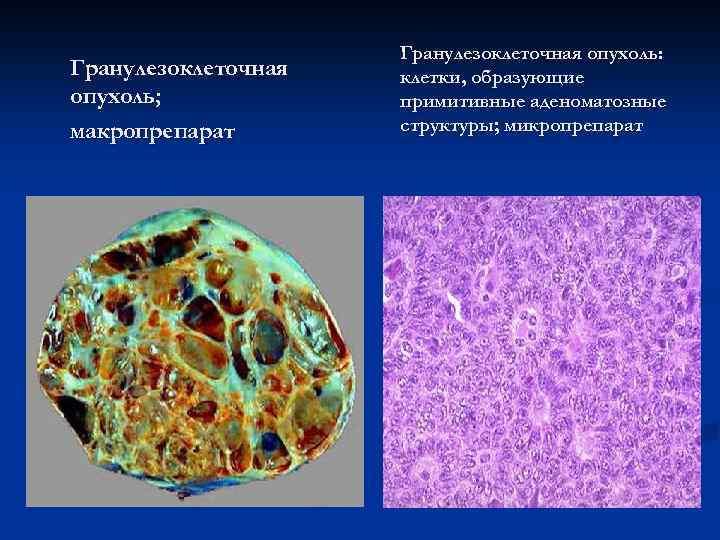 Гранулезоклеточная опухоль; макропрепарат Гранулезоклеточная опухоль: клетки, образующие примитивные аденоматозные структуры; микропрепарат