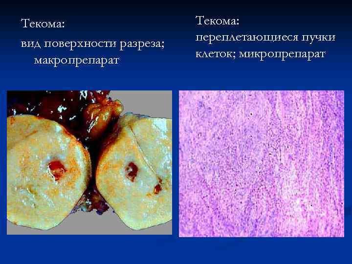 Текома: вид поверхности разреза; макропрепарат Текома: переплетающиеся пучки клеток; микропрепарат