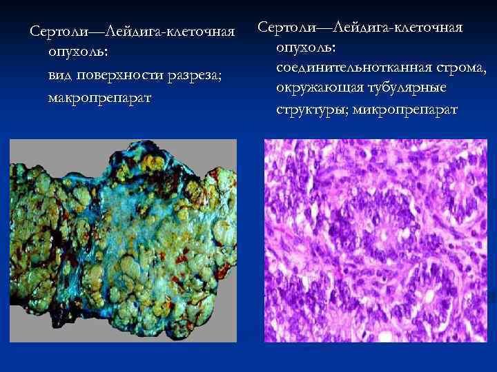 Сертоли—Лейдига-клеточная опухоль: вид поверхности разреза; макропрепарат Сертоли—Лейдига-клеточная опухоль: соединительнотканная строма, окружающая тубулярные структуры; микропрепарат