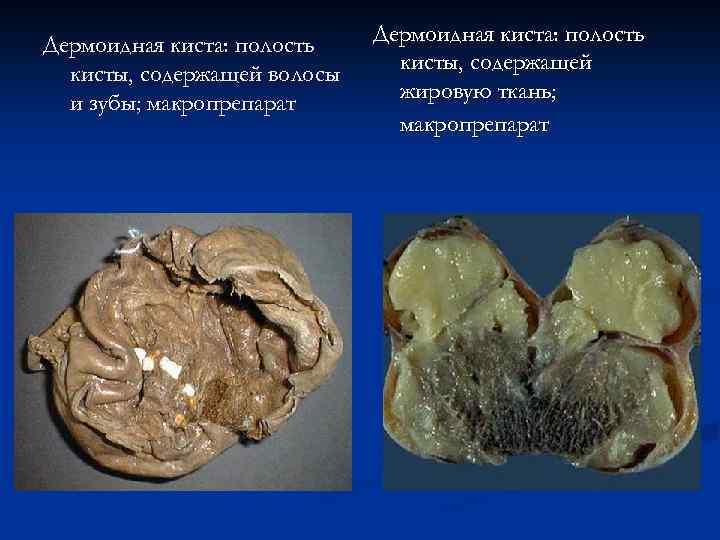 Дермоидная киста: полость кисты, содержащей волосы и зубы; макропрепарат Дермоидная киста: полость кисты, содержащей