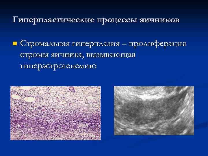 Гиперпластические процессы яичников n Стромальная гиперплазия – пролиферация стромы яичника, вызывающая гиперэстрогенемию