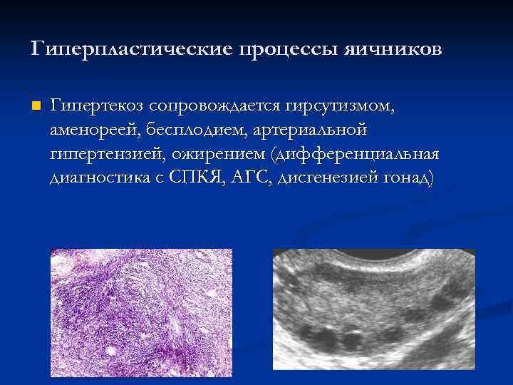 Гиперпластические процессы яичников n Гипертекоз сопровождается гирсутизмом, аменореей, бесплодием, артериальной гипертензией, ожирением (дифференциальная диагностика