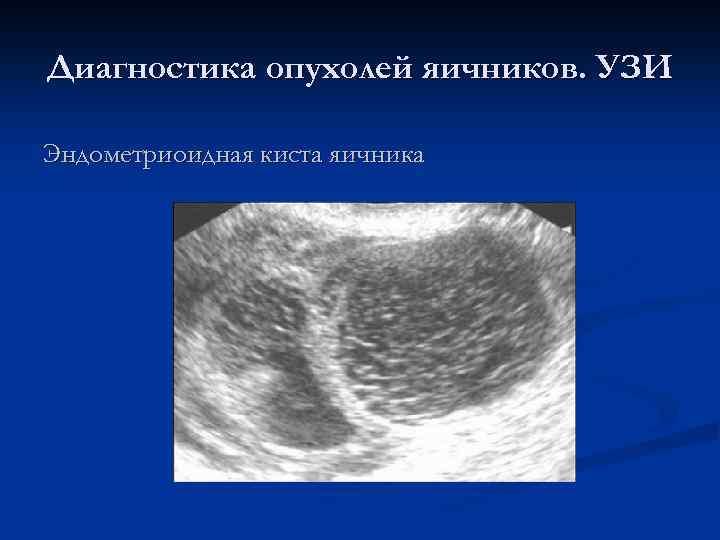 Диагностика опухолей яичников. УЗИ Эндометриоидная киста яичника