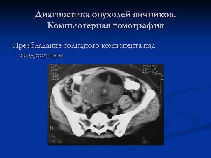 Диагностика опухолей яичников. Компьютерная томография Преобладание солидного компонента над жидкостным