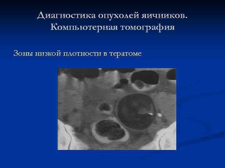 Диагностика опухолей яичников. Компьютерная томография Зоны низкой плотности в тератоме