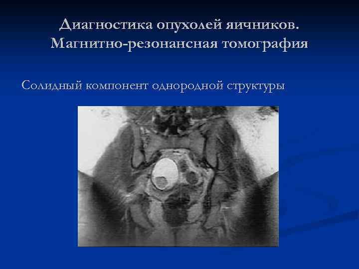 Диагностика опухолей яичников. Магнитно-резонансная томография Солидный компонент однородной структуры