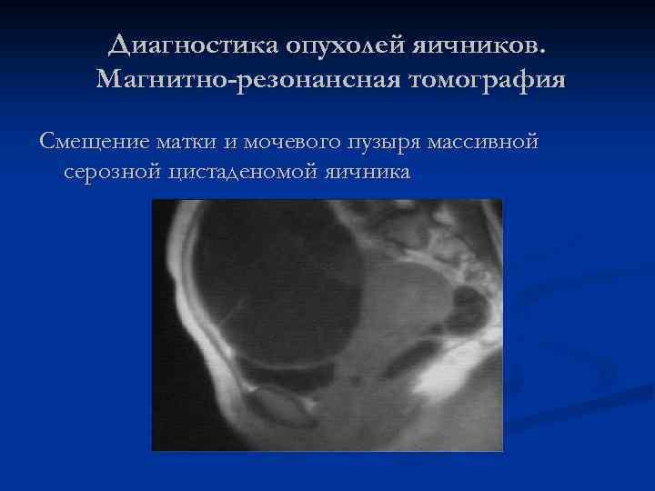 Диагностика опухолей яичников. Магнитно-резонансная томография Смещение матки и мочевого пузыря массивной серозной цистаденомой яичника