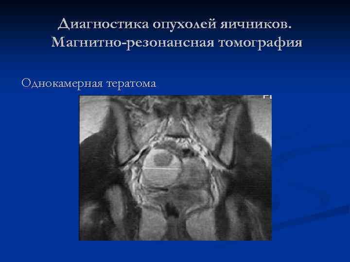 Диагностика опухолей яичников. Магнитно-резонансная томография Однокамерная тератома
