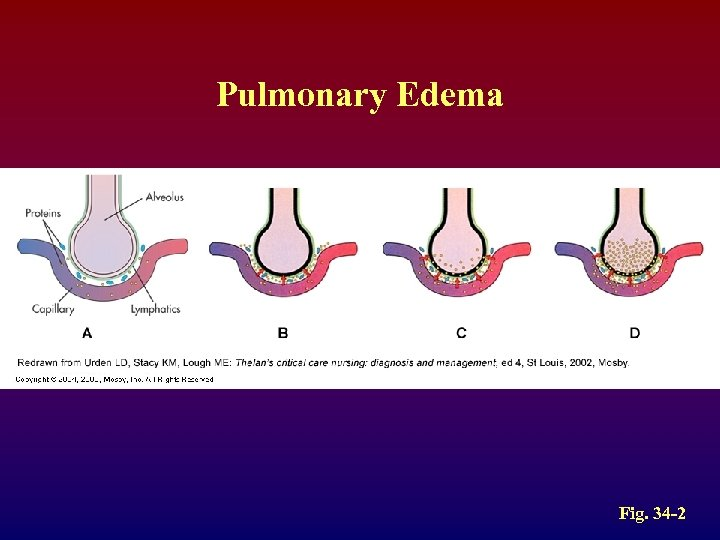 Pulmonary Edema Fig. 34 -2