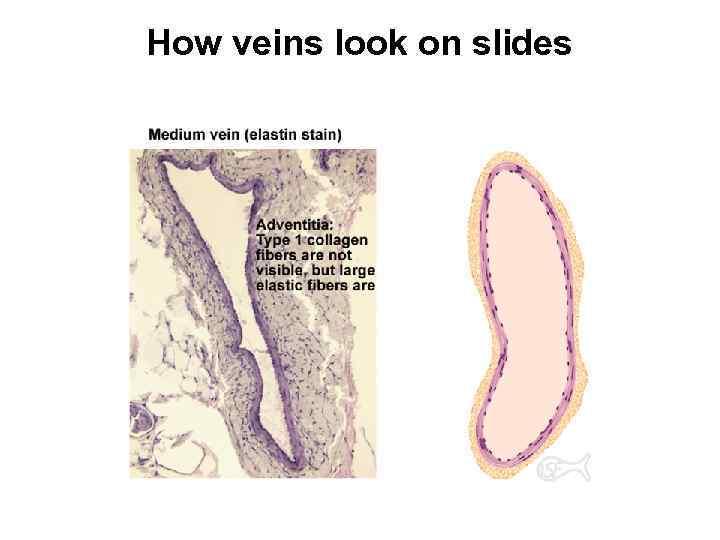 How veins look on slides