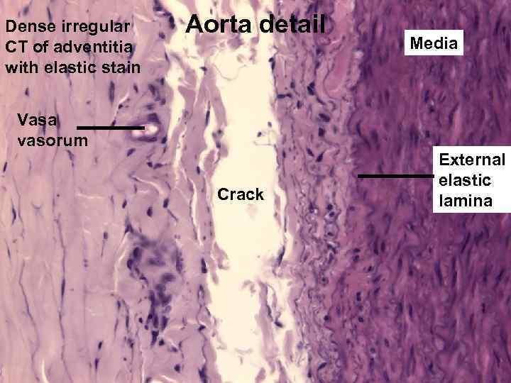 Dense irregular CT of adventitia with elastic stain Aorta detail Media Vasa vasorum Crack