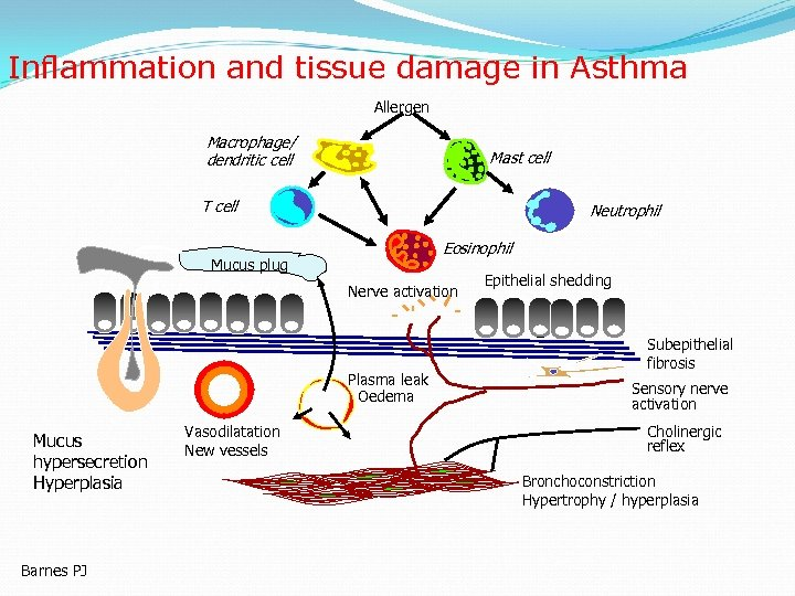Inflammation and tissue damage in Asthma Allergen Macrophage/ dendritic cell Mast cell T cell