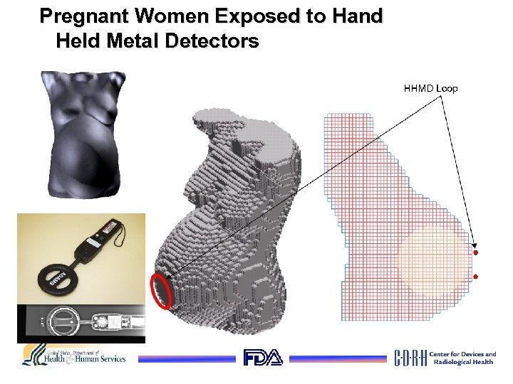 Pregnant Women Exposed to Hand Held Metal Detectors