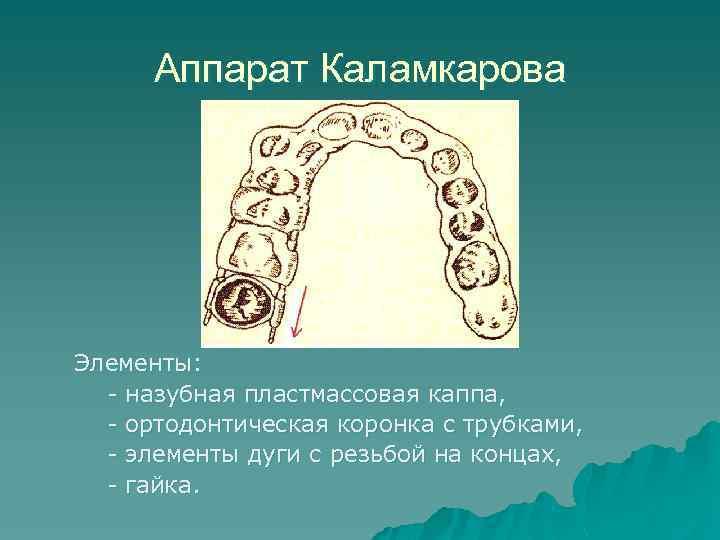 Аппарат Каламкарова Элементы: - назубная пластмассовая каппа, - ортодонтическая коронка с трубками, - элементы