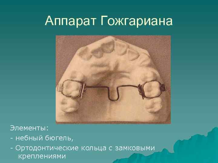 Аппарат Гожгариана Элементы: - небный бюгель, - Ортодонтические кольца с замковыми креплениями