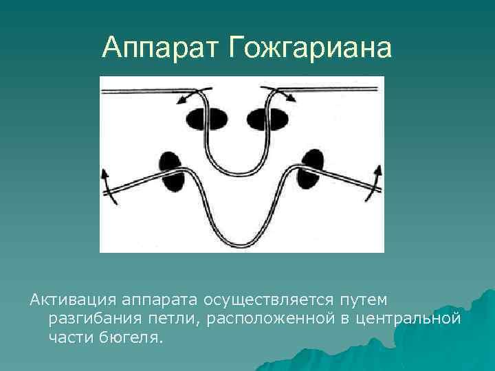 Аппарат Гожгариана Активация аппарата осуществляется путем разгибания петли, расположенной в центральной части бюгеля.