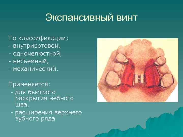 Экспансивный винт По классификации: - внутриротовой, - одночелюстной, - несъемный, - механический. Применяется: -