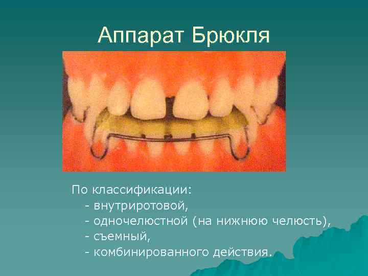 Аппарат Брюкля По классификации: - внутриротовой, - одночелюстной (на нижнюю челюсть), - съемный, -