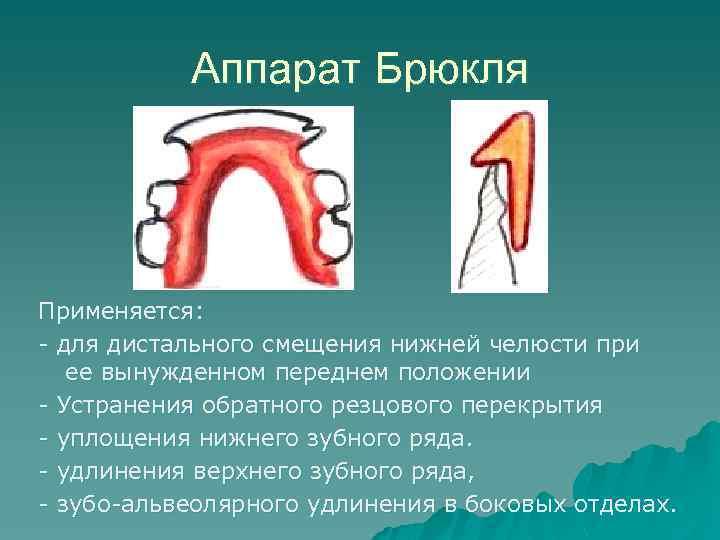 Аппарат Брюкля Применяется: - для дистального смещения нижней челюсти при ее вынужденном переднем положении