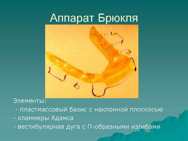 Аппарат Брюкля Элементы: - пластмассовый базис с наклонной плоскосью - кламмеры Адамса - вестибулярная