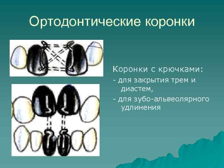 Ортодонтические коронки Коронки с крючками: - для закрытия трем и диастем, - для зубо-альвеолярного