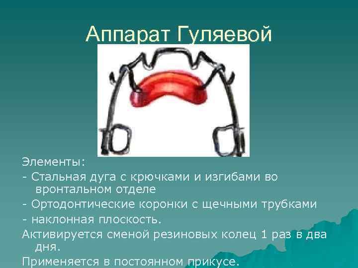 Аппарат Гуляевой Элементы: - Стальная дуга с крючками и изгибами во вронтальном отделе -