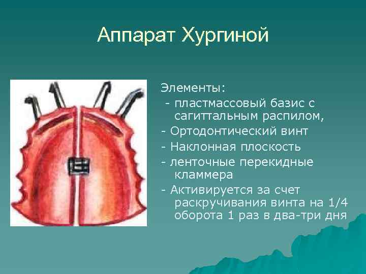 Аппарат Хургиной Элементы: - пластмассовый базис с сагиттальным распилом, - Ортодонтический винт - Наклонная