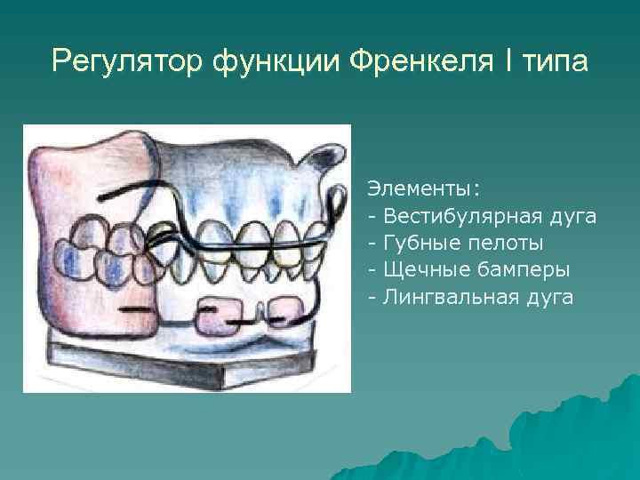 Регулятор функции Френкеля I типа Элементы: - Вестибулярная дуга - Губные пелоты - Щечные