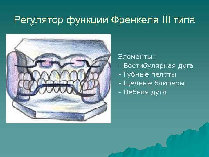 Регулятор функции Френкеля III типа Элементы: - Вестибулярная дуга - Губные пелоты - Щечные