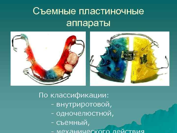 Съемные пластиночные аппараты По классификации: - внутриротовой, - одночелюстной, - съемный,