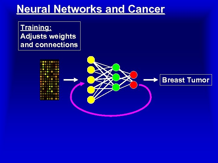 Neural Networks and Cancer Training: Adjusts weights and connections Breast Tumor