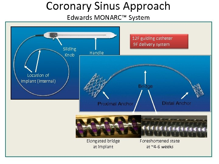 Coronary Sinus Approach Edwards MONARC™ System Sliding Knob 12 F guiding catheter 9 F
