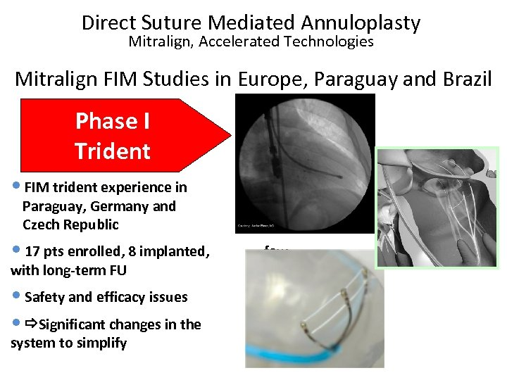 Direct Suture Mediated Annuloplasty Mitralign, Accelerated Technologies Mitralign FIM Studies in Europe, Paraguay and