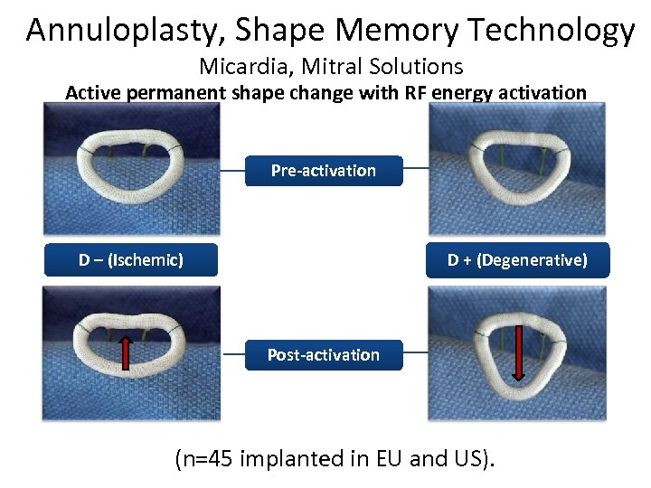 Annuloplasty, Shape Memory Technology Micardia, Mitral Solutions Active permanent shape change with RF energy