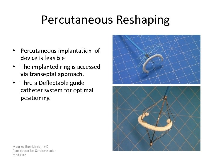 Percutaneous Reshaping • Percutaneous implantation of device is feasible • The implanted ring is