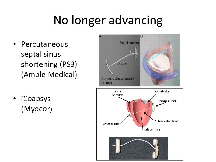 No longer advancing • Percutaneous septal sinus shortening (PS 3) (Ample Medical) • i.