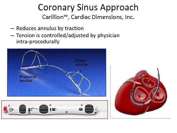Coronary Sinus Approach Carillion™, Cardiac Dimensions, Inc. – Reduces annulus by traction – Tension