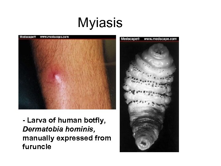 Myiasis - Larva of human botfly, Dermatobia hominis, manually expressed from furuncle