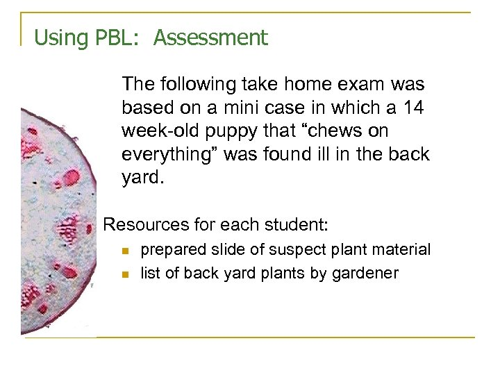 Using PBL: Assessment The following take home exam was based on a mini case