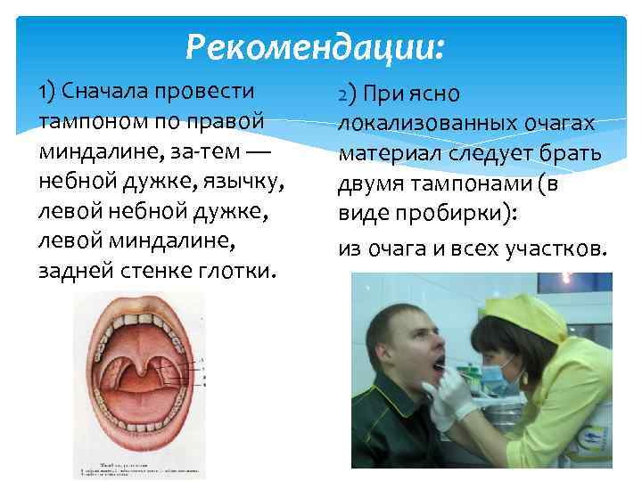 Рекомендации: 1) Сначала провести тампоном по правой миндалине, за тем — небной дужке, язычку,