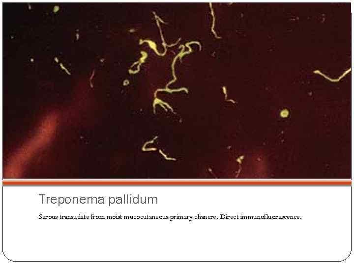 Treponema pallidum Serous transudate from moist mucocutaneous primary chancre. Direct immunofluorescence.