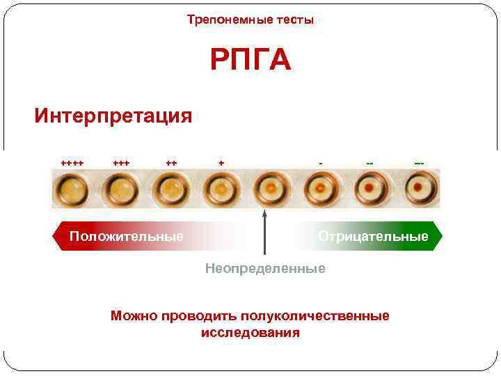 Трепонемные тесты РПГА Интерпретация ++++ ++ Положительные + - -- --- Отрицательные Неопределенные Можно