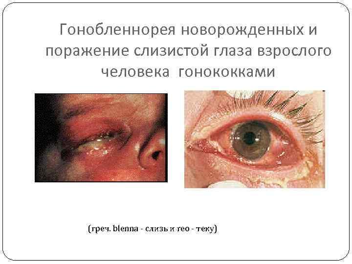 Гонобленнорея новорожденных и поражение слизистой глаза взрослого человека гонококками (греч. blenna - слизь и