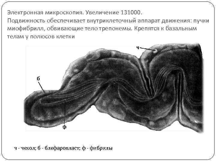 Электронная микроскопия. Увеличение 131000. Подвижность обеспечивает внутриклеточный аппарат движения: пучки миофибрилл, обвивающие тело трепонемы.