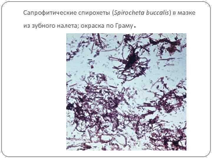 Сапрофитические спирохеты (Spirocheta buccalis) в мазке из зубного налета; окраска по Граму .