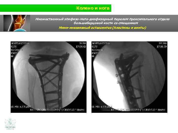 Колено и нога Множественный эпифизо-мета-диафизарный перелом проксимального отдела большеберцовой кости со смещением Мини-инвазивный остеосинтез
