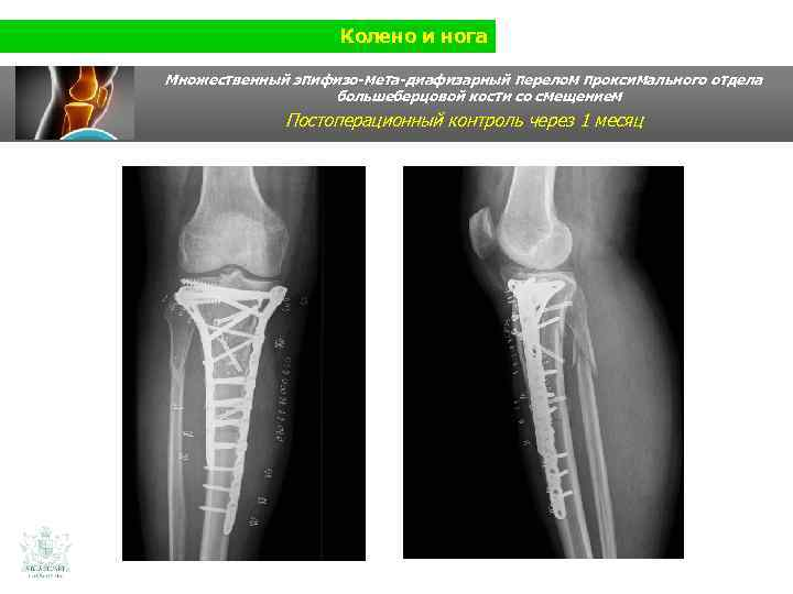 Колено и нога Множественный эпифизо-мета-диафизарный перелом проксимального отдела большеберцовой кости со смещением Постоперационный контроль