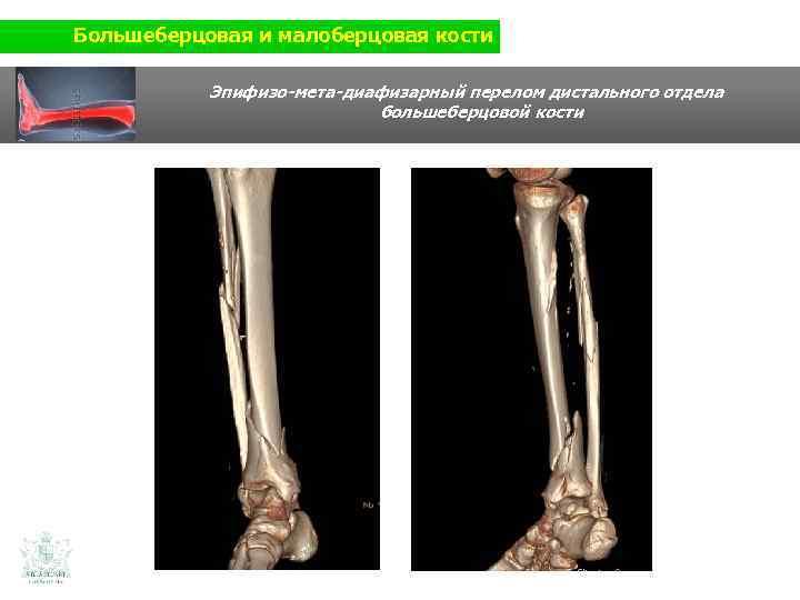 Большеберцовая и малоберцовая кости Эпифизо-мета-диафизарный перелом дистального отдела большеберцовой кости