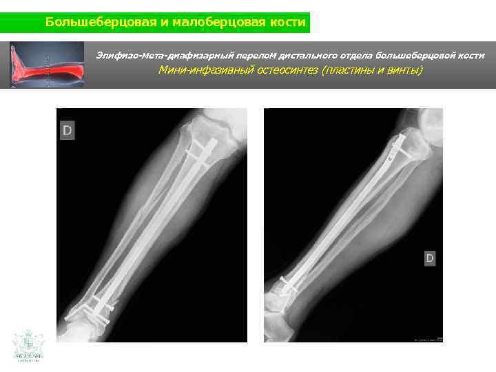 Большеберцовая и малоберцовая кости Эпифизо-мета-диафизарный перелом дистального отдела большеберцовой кости Мини-инфазивный остеосинтез (пластины и